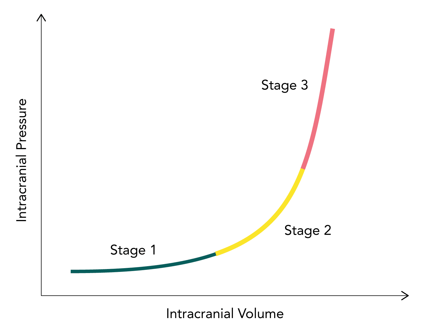 Intracranial compliance curve demonstrating the relationship between intracranial volume and intracranial pressure (ICP)