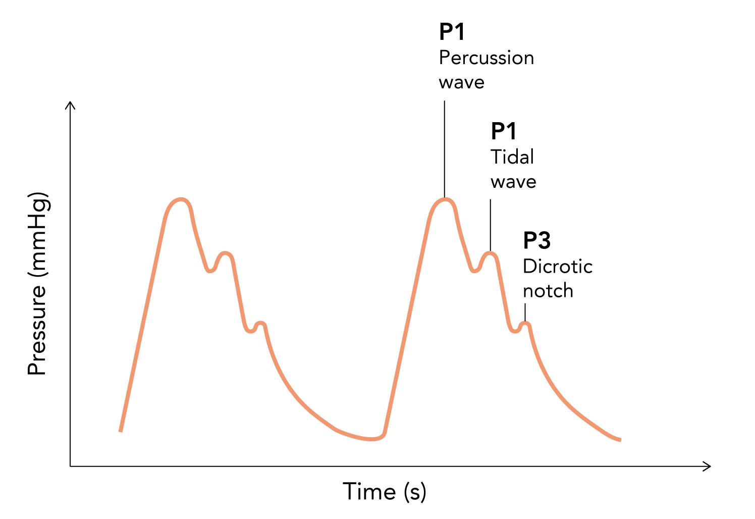 Normal intracranial pressure (ICP) waveform