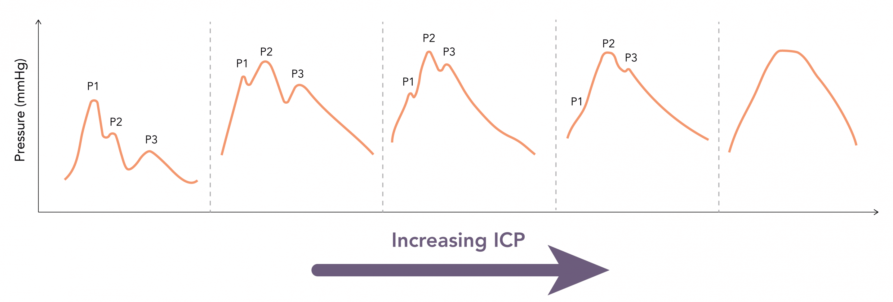 Changes in the morphologu of the ICP waveform with rising ICP