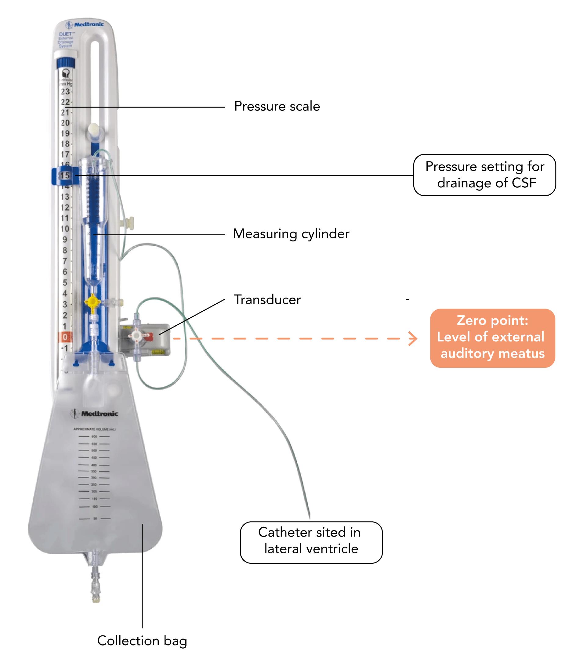 Features of an external ventricular drain (EVD)